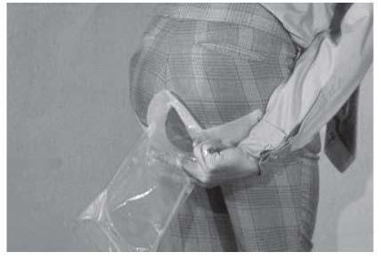 fecal bag